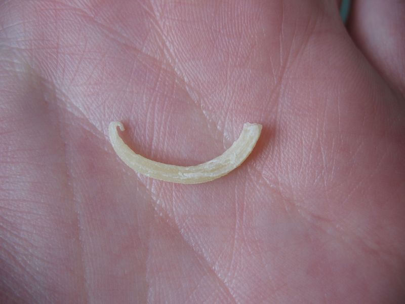 Tooth chip